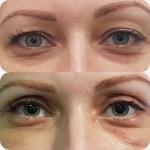 Блефаропластика фото до и после
