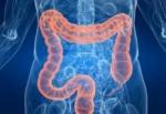 Лимфома кишечника: симптомы, диагностика и прогноз